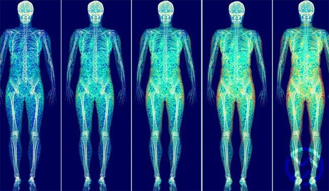 la prueba para detectar problemas en los huesos