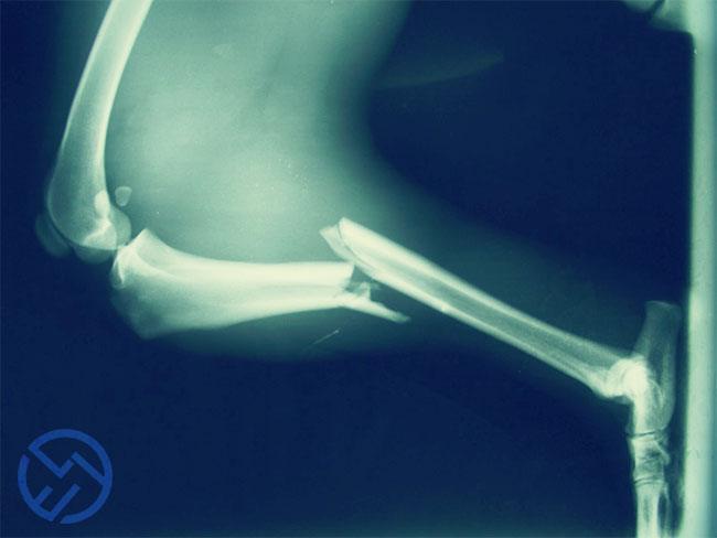 esta enfermedad provoca más fracturas en los huesos