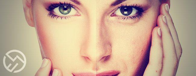 fotorejuvenecimiento facial beneficios
