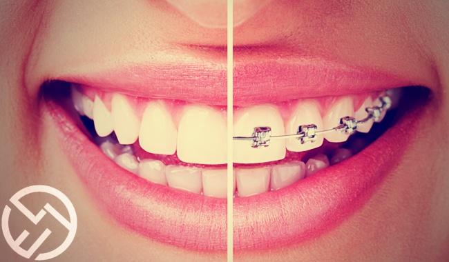 ortodoncia que es