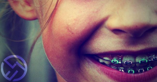 evitar aparatos dentales niños