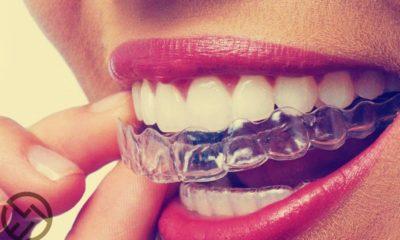 cuanto cuesta un blanqueamiento dental