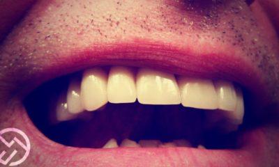 causas manchas en los dientes