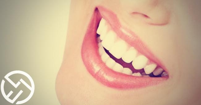 El blanqueamiento dental es una práctica segura