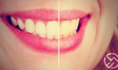 productos para blanquear dientes amazon