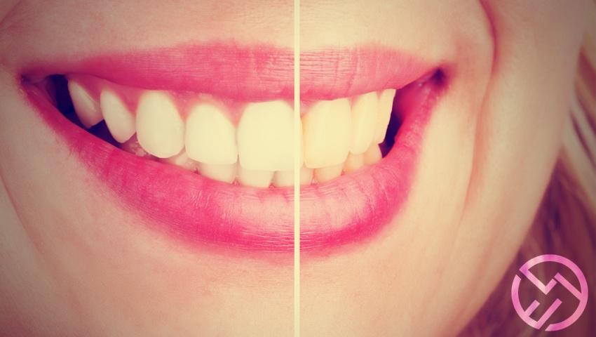 Mejores Productos Y Tipos De Blanqueamiento Dental Más Efectivos