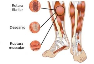 Grados de lesión muscular anatómica