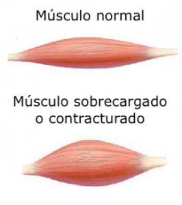 Músculo sobrecargado