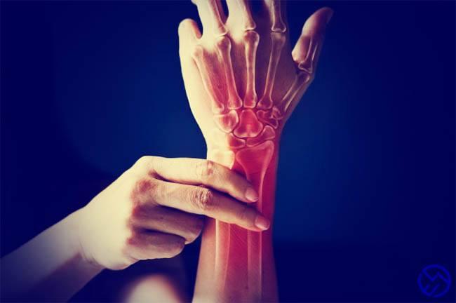 el efecto de la glucosamina en articulaciones y huesos