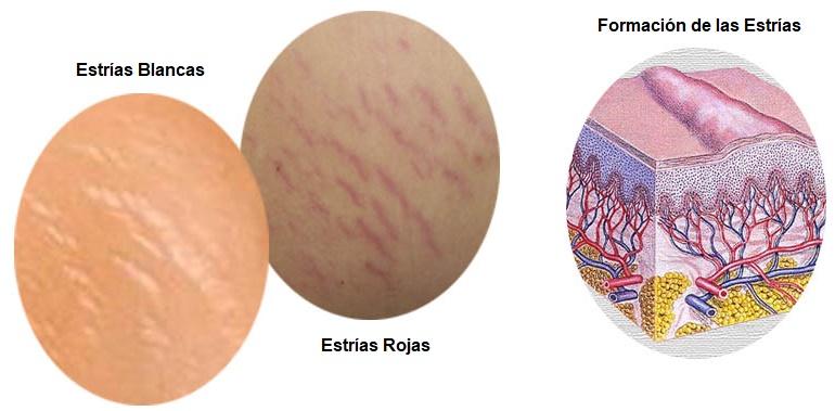 Tipos de estrías y su formación