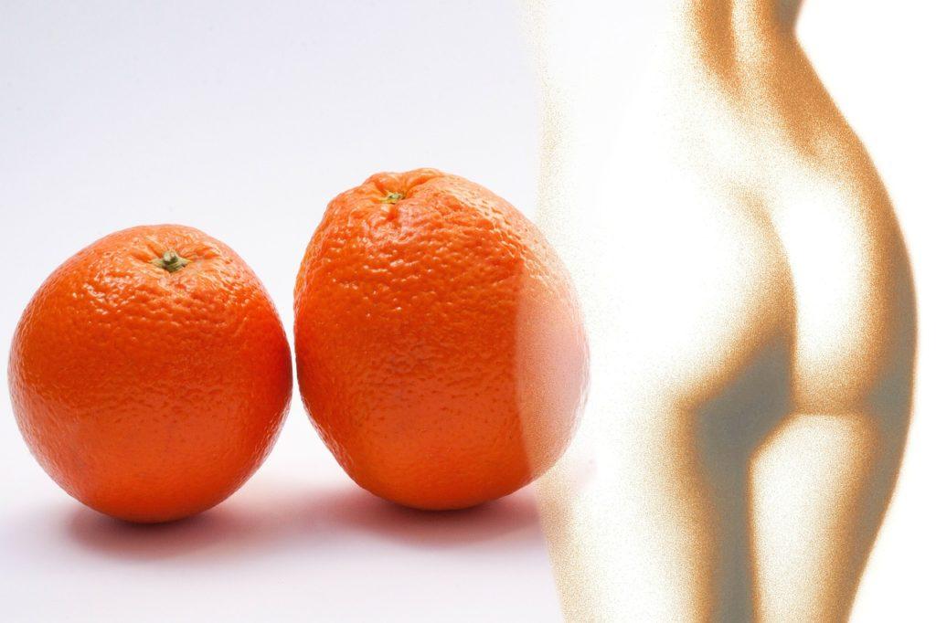La piel de naranja una consecuencia de la celulitis