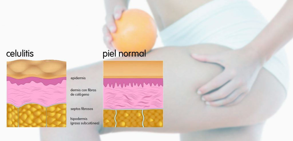 La piel de naranja - Cómo se produce