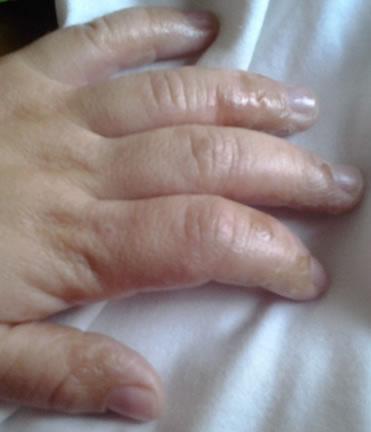 mano de bebe con piel atopica