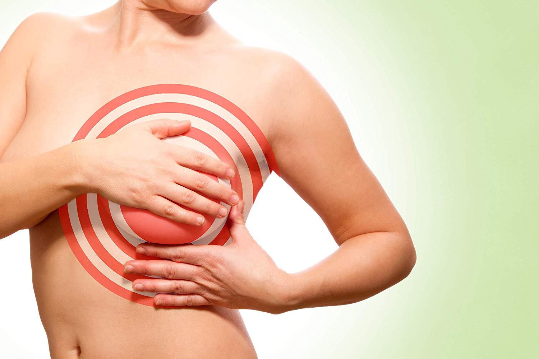 zona aplicación productos senos