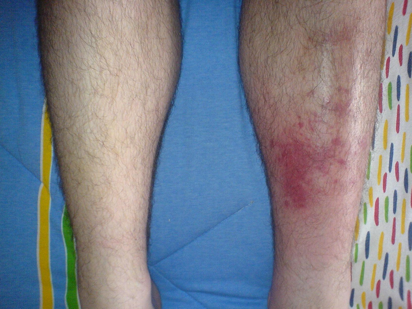 celulitis infecciosa en la pierna parte trasera
