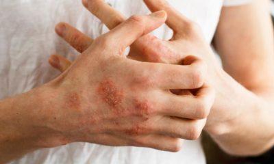 dermatitis atopica manos